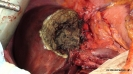 Left Hepatectomy